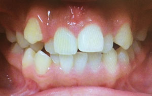 Severe Crowding correction. Expansion during orthodontic treatment.