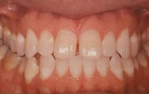 Diastema. Maxillary Space closure and correction of Mandibular crowding.