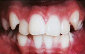 Severe crowding with non-extraction orthodontic treatment